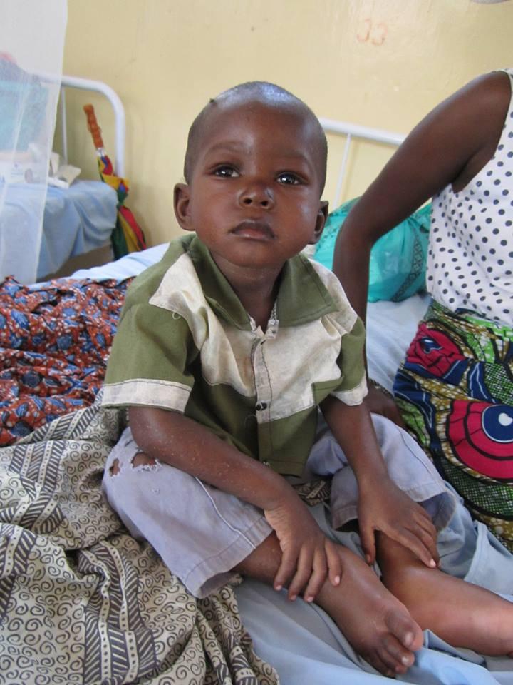 Un enfant malnutris interné à l'hôpital général de référence de Kalémie