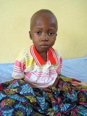 Un enfant souffrant de malnutrition aigue admis à l'hôpital général de référence de Kalemie